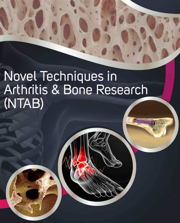 Juniper Publishers Novel Techniques in Arthritis & Bone Research