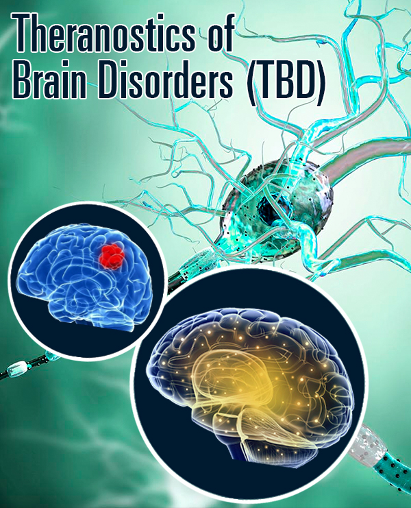Juniper Publishers Theranostics of Brain, Spine & Neural Disorders