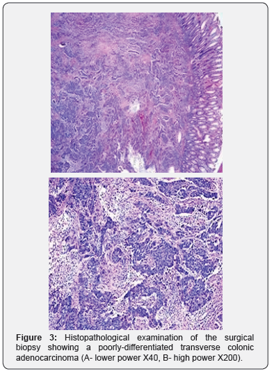 An Unusual Metastatic Pattern Of A Transverse Colon Cancer A Case Report And Review Of Literature